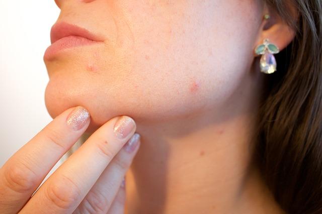 soigner les cicatrices acné